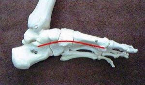 腰痛に効果的なテニスボール体操アーチの解説1